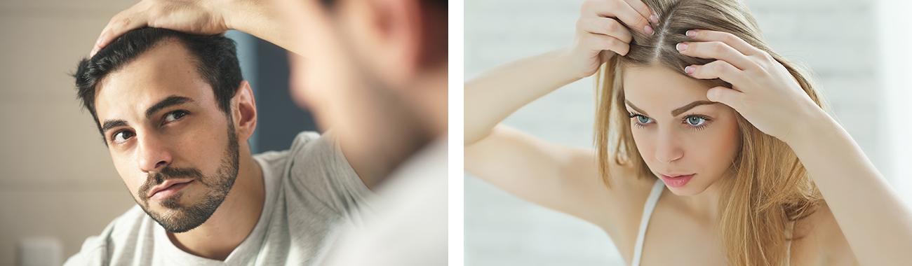 Metodi di infoltimento capelli Milano